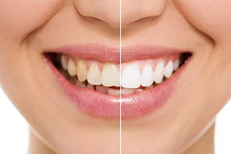 Cosmetic Dentistry near Massanetta Springs