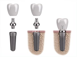 Dental Implants in Harrisonburg